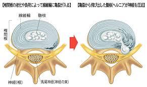 椎間板ヘルニアの形態による分類